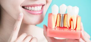 Salud bucodental: los implantes dentales